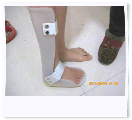 Her foot is applied with orthosis