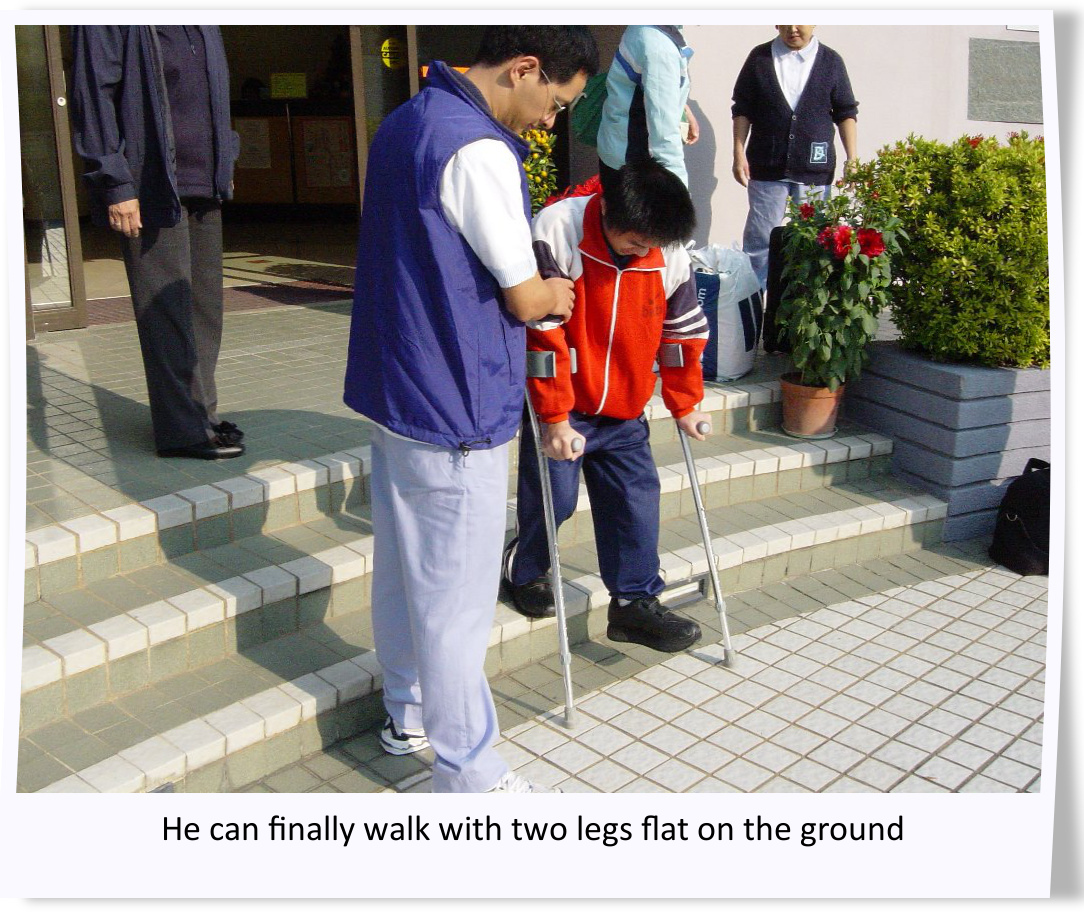 he can finally walk with two legs flat on the ground