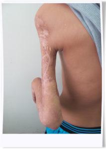 手臂橈神經導致麻痹